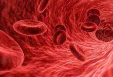 صورة بحث شامل عن نسبة البروتين في الدم و البول أسبابة وأعراضه وطرق الفحص