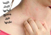 صورة أﻫم المعلومات عن الإكزيما : اكزيما الجلد أنواعها وجميع طرق علاجها