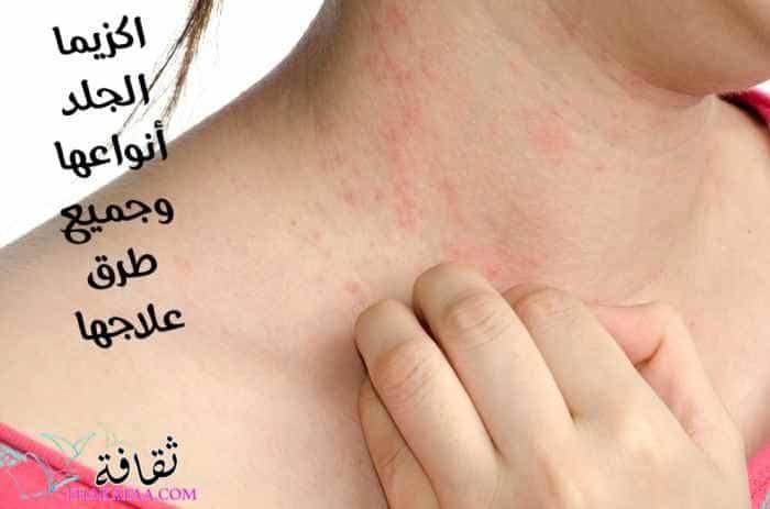 اكزيما الجلد أنواعها وجميع طرق علاجها